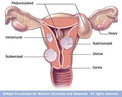 Mayo uterine fibroid